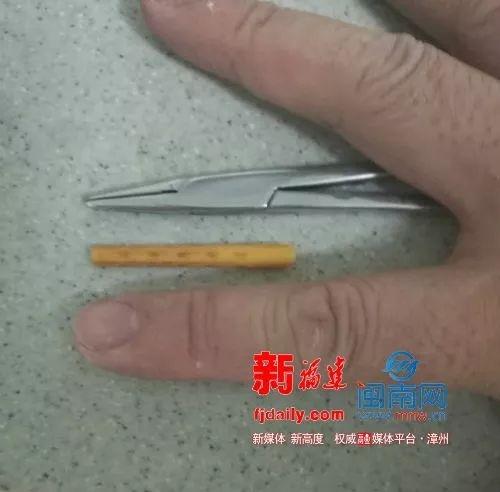 诏安2岁男孩吃饭时摔倒,4.5厘米长筷子贯穿眼眶